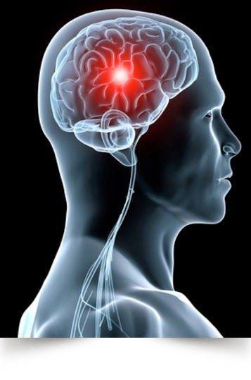ictus-cerebro